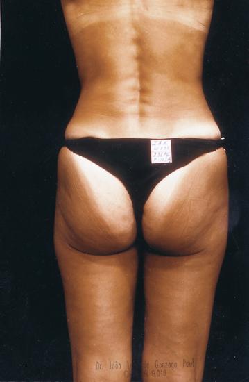 savoir maigrir endermologie pour combattre la cellulite programme anti cellulite. Black Bedroom Furniture Sets. Home Design Ideas